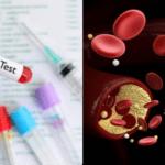 【高血鈣的症狀與原因】高鈣血症是什麼?怎麼治療?